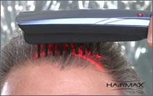 hair growth stimulation with laser photo therapy